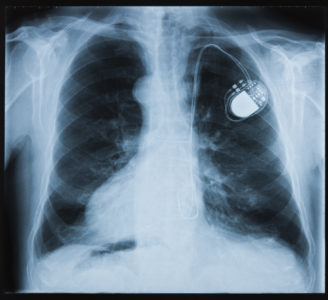Illustration of Treatment For Broken Bones That Have Pacemakers In The Vicinity?