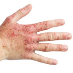 Illustration of Red Rashes That Spread On The Skin Of The Hand?