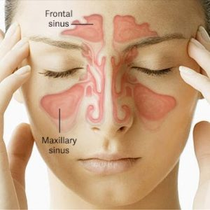 Illustration of The Left Nose Aches And Secretes Mucus?