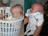 Slow Growth In Infants Who Have Experienced Coma