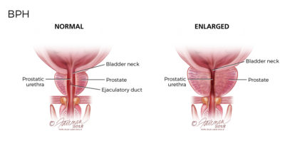 Illustration of The Cause Of The Bladder Enlarges?