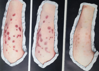 Illustration of Pain In The Buttocks After Syphilis Injection?