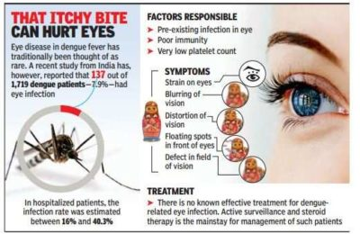 Illustration of The Use Of Dengue Medication When Using Eye Drops To Reduce Eye Pressure