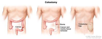 Illustration of Action After Making Colostomy In Patients With Rectal Cancer?