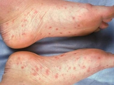Illustration of Red Spots Appear On The Feet?