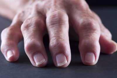 Illustration of Swollen Fingers And Toes?