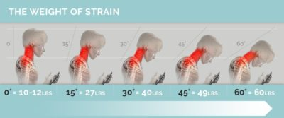 Illustration of The Cause Of The Spine Hurts When Looking Down?