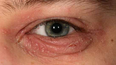 Illustration of Itchy Redness Is Like A Ring On The Eyelid Area And Next To The Nose Of An 11 Month Old Baby?