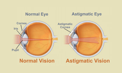 Illustration of Is It Normal For The Minus Eye To Increase?