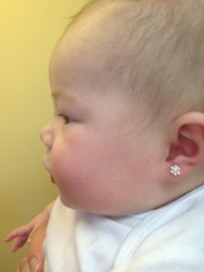 Illustration of Can The Piercing On The Baby's Ears Return To Normal?