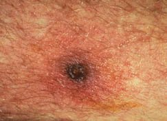 Illustration of What Are The Early Signs And Symptoms Of Typhus?