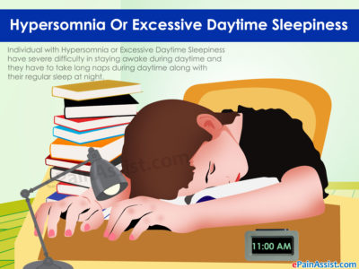Illustration of How To Deal With Hypersomnia / Excessive Sleepiness?