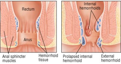 Illustration of Anal Lumps Accompanied By Hot And Cold At Night?