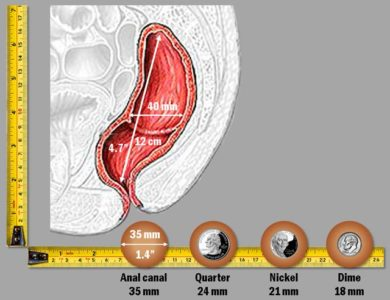 Illustration of Fecal Discharge Without Realizing It When Farting?