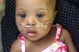 Handling Of Heart Leak In Infants Aged 7 Months Without Surgery?