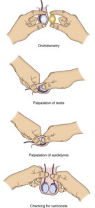 Illustration of Overcoming Pain Due To Varicocele And Ejaculatory Fluid That Does Not Come Out?