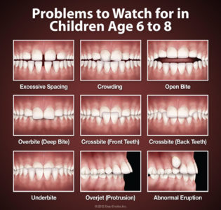Illustration of Treatment For Abnormalities In A Child's Dental Growth?