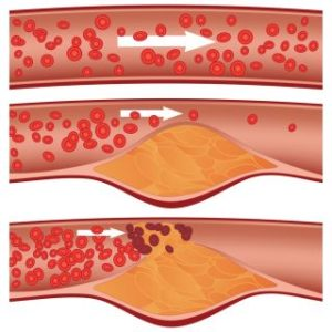 Illustration of What Is The Cholesterol Level That Is Said To Be High?
