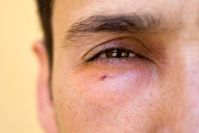 Illustration of Handling Of Swollen Eyes After Being Bitten By An Insect?