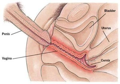 Illustration of Discomfort In The Vagina During Urination After Intercourse?