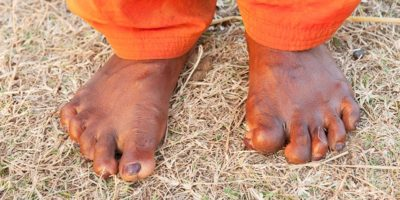Illustration of Overcoming The Numb Foot Caused By Leprosy?