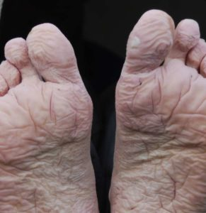 Illustration of The Cause Of The Soles Of The Feet Feels Cold?