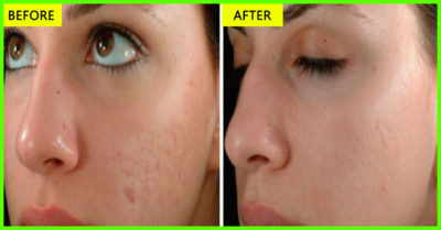 Illustration of The Use Of Olive Oil To Deal With Acne On The Face?