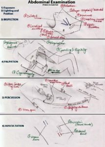 Illustration of Examination For Abdominal Pain That Does Not Go Away?