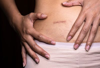 Illustration of The Cause Appears Bruising In The Abdomen After Ectopic Pregnancy Surgery?