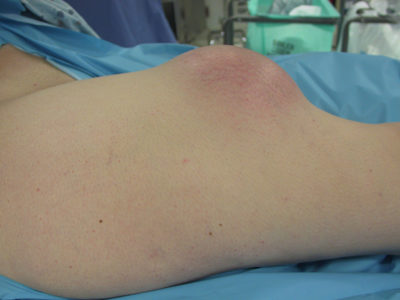 Illustration of The Cause Of Lumps Felt Above The Child's Knee Without Accompanied By Pain?