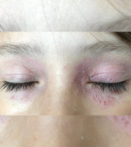 Illustration of Overcoming Irritated Eyes After Using Cosmetic Products?