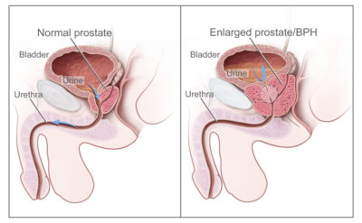 Illustration of Causes And Ways To Overcome Nasal Congestion When Treating BPH (benign Prostatic Hyperplasia)?