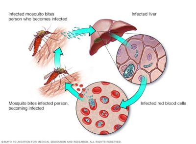 Illustration of What Are The Early Symptoms Of Malaria?