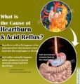 The Cause Of Heartburn?