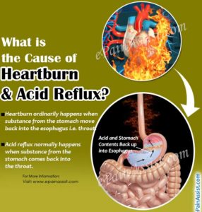 Illustration of The Cause Of Heartburn?