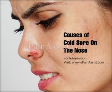 Illustration of The Nose Is Sore And Sore?