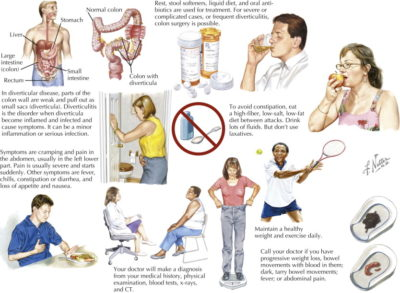 Illustration of Children Experiencing Liquid Bowel Movements, Difficulty Eating And Weight Loss?