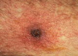 Signs And Symptoms Of Typhus?