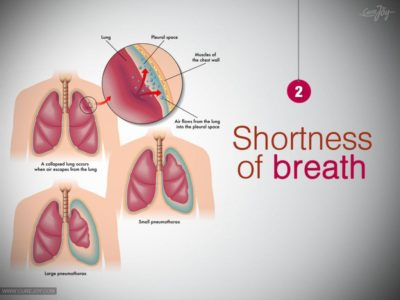 Illustration of Causes Of Shortness Of Breath In Patients With Kidney Disease Who Undergo Dialysis?