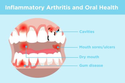 Illustration of How To Deal With Pain In Cavities And Swollen Gums?