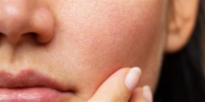 Illustration of Dull And Inflamed Facial Skin During The Day And Moist At Night?