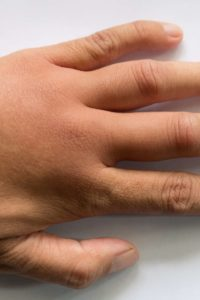 Illustration of Normally, When Pressing On The Skin With A Finger With A White Mark And A Few Moments Back To Normal?