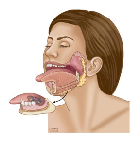 Illustration of The Jawbone Is Seen After Odontectomy?