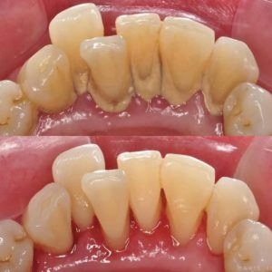 Illustration of After Scaling Of Teeth?