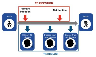 Illustration of Doubts Of The Disease Experienced By Children Whether TB Infection Or Bronchitis?