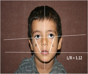 Illustration of Treatment Of Asymmetrical Or Oblique Faces?