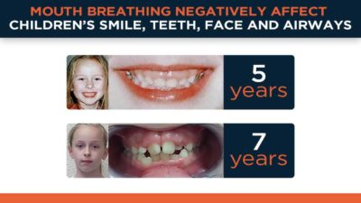 Illustration of Handling In Children Who Have Difficulty Eating GTM (Mouth Shut Movement)?