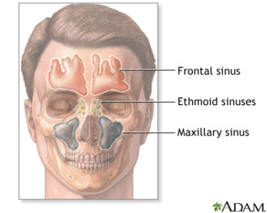Illustration of The Cause Of Pain In The Nasal Bones That Spread To The Eyes?