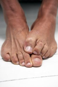 Illustration of The Cause Of Surgery For Amputation Of The Toe Is Swollen And Aching For 5 Months After Surgery?