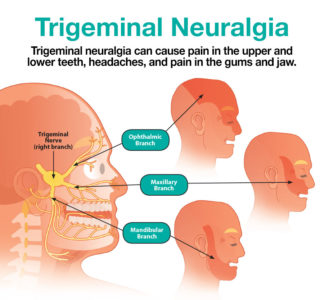 Illustration of Differences In Gum Pain Due To Toothache And Trigeminal Nerve Disorders?